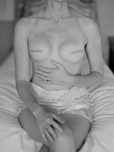 breast reconstruction post cancer