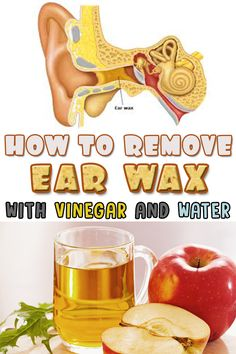 9 best home remedies to remove earwax images on pinterest natural how to remove ear wax with vinegar and water solutioingenieria Image collections