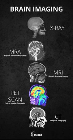 Science Discover Guide to different types of brain imaging : coolguides Radiology Student Medical Students Nursing Students Medical Facts Medical Information Medical Care Nursing School Notes Medical School Human Anatomy And Physiology Radiology Student, Medical Students, Nursing Students, Student Memes, Nursing Student Quotes, Radiology Humor, Medical Facts, Medical Science, Brain Science