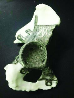 Chinese Doctors 3D Print a Titanium Pelvic Prosthesis for Cancer Survivor Afflicted with Bone Metastases