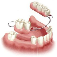 Partial Dentures, a Viable Alternative to Dental Implants? Teeth Implants, Dental Implants, Dental Hygienist, Tooth Bridge, Sedation Dentistry, Tooth Replacement, Dental Art, Dental Bridge, Dental Surgery