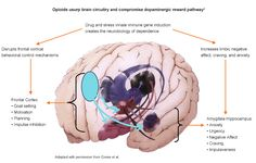 Neonatal Abstinence Syndrome Diagram | Brain Diagram Amygdala... Neonatal Abstinence Syndrome, Brain Diagram, 504 Plan, What Is Family, Family Practice, Foster To Adopt, Nicu, Nurse Life, The Fosters