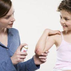 Tipos de antisépticos para las heridas de los niños.