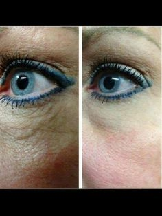 Real Results, Real People, Real Difference!  No other product on the market can give you these results.  Nerium-AD. Contact me for info mrsschraut@gmail.com. Or visit Www.youngnskin.nerium.com