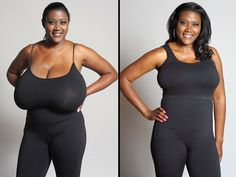 Woman Whose Bra Size Was 36N Gets a Life-Changing Breast Reduction http://www.people.com/article/texas-woman-breast-reduction-gigantomastia