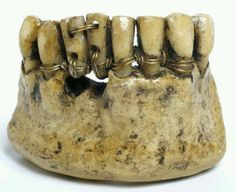 Ancient Etruscan Dentistry - The next time you complain about your dental visit, be glad you weren't born in this poor dude's time. Yipes!