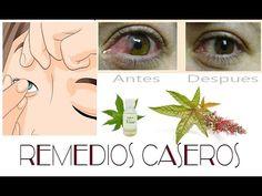Eliminar la Carnosidad en los Ojos (Pterigión) con este Remedio Natural. - YouTube