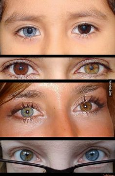 - * Heterochromia Iridis * - Heterochromia (Greek : heteros 'different' + chromia 'color') of the eye. A condition in which the iris (the colored part of the eye) is composed of different colored segments or patches or when the iris of one eye is of a different color than the other. It may involve one or both eyes. There are several causes both natural and from 'outside' sources such as eye drops and environment -