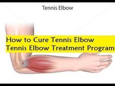 How to Cure Tennis Elbow - Tennis Elbow Treatment Program