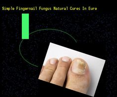 Simple fingernail fungus natural cures in eure - Nail Fungus Remedy. You have nothing to lose! Visit Site Now