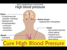 Cure High Blood Pressure - Blood Pressure Treatment #BloodPressureTreatment