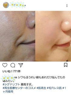 【老肌の再生者多数!】再生医療センターが開発の次世代新成分で、1ヶ月でシワやほうれい線が消え、キメ肌になれました。 | Happiness Woman