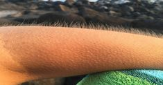 Do You Get Goosebumps When You're Listening To Music? You Might Have Special Brain Human Body Facts, Tissue Types, Feeling Numb, University Of Southern California, Good Find, Listening To Music, Cool Things To Buy, Brain, Feelings