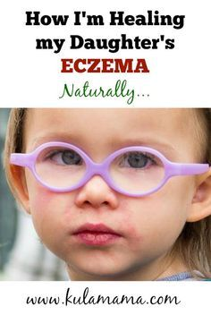 how to heal eczema naturally from www.kulamama.com