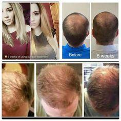 Get the hair you dream of with Nutriol! ❤️ Enter CA00173383 for a discount at the checkout: www.nuskin.com ❤️ #Hair #HairLoss #MensFashion #Haircare #LongHair #GrowHair #HealthyHair Galvanic Spa, Hair Growth For Men, Hair Growth Shampoo, Nu Skin, Love Your Hair, Grow Hair, Anti Aging Skin Care, Hair Loss, Hair Hacks