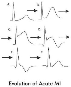 EKG evolution: Hyperacute T waves (immediately -- 6-24Hrs), ST segment elevation (immediately -- 1-6 weeks),  Q waves (one to several days -- years to never), T wave inversion (6-24 hrs -- months to years)