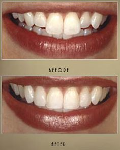 Dental specialist will treat you and make a symmetry in your teeth. Teeth whitening , Gap filling and crowns are also using for making you happy.