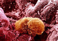 A human embryo implanting, six days after fertilization.