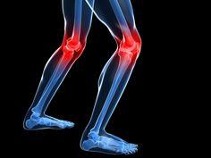Elimina el dolor de su rodilla y articulaciones en tan solo 1 día – Ponte En Salud