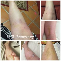 ACL Recovery - Month One www.myhometruths.com My story of recovery from ACL reconstruction surgery