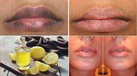 Le devolví el color que tanto deseaba a mis labios con este remedio natural ¡No más zonas oscuras!