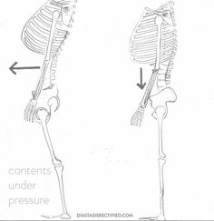 sketch of skeletons, one with rib thrust, one without