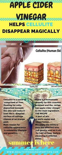 Cellulite is a name of comprised of free-floating fat cells deposited beneath the skin and make it look like a dimpled surface of cottage cheese or an orange peel. Main reason for cellulite appearance is unhealthy lifestyle and genetics. Health Tips For Women, Health Advice, Health And Beauty, Health Care, Women's Health, Home Health, Health Articles, Healthy Tips, Healthy Skin