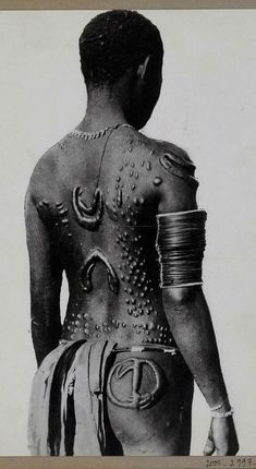 Melanesia - New Britain Tattoo embroidered on the back of a native; body ornamentation obtained by scarification. Gasmata. 1930 - 1935 ©Musée du quai Branly, photo Edmond Demaitre.