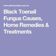 Black Toenail Fungus Causes, Home Remedies & Treatments
