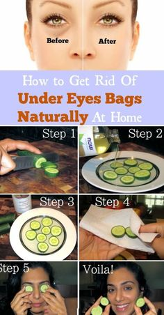 How To Get Rid Of Under Eye Bags: 9 Proven Home Remedies That Works Looking for how to get rid of under eye bags but with little or no result? With these home remedies, you would get rid of it very easily. Tips And Tricks, Makeup Tricks, Diy Makeup, Eye Bag Cream, Skin Cream, Autogenic Training, Dry Eyes Causes, Under Eye Bags, How To Get Rid Of Bags Under Eyes