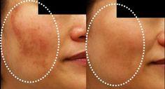 O melasma são manchas que aparecem na pele do rosto que se expõe ao sol. É um transtorno cutâneo bastante comum que afetas as mulheres ...