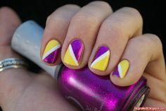 Yellow, White, and Glittery Fuchsia Nails