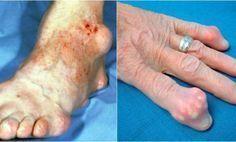 Este secreto oculto de los doctores sale a la luz! La cura para el reumatismo, artritis y enfermedades de las articulaciones   Salud con Remedios