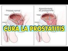 mujer da masaje de próstata al hombre de youtube