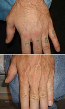 Tattoo removal before and after on pinterest tattoo for Erase a tattoo