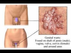 Remove Moles Warts and Skin Tags Safely Naturally Permanently