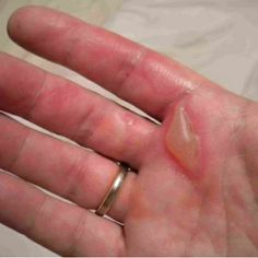 Eight Excellent Home Remedies For Burns on Fingers/Hands