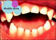 Ortopedia Funcional e Ortodontia | Odonto-TV