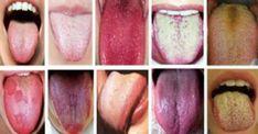 Zmiany na języku - 8 rozdajów o których powinieneś wiedzieć! Healthy Tongue, Tongue Health, Healthy Tips, How To Stay Healthy, Healthy Habits, Sinus Infection, Chinese Medicine, Japanese Medicine, The Secret