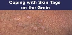 Skin tags are a common ailment that many will experience at some point in their lives. While these fleshy growths are not dangerous, they can still be quite embarrassing, even more so when they appear in the genital region. At first glance one may think they have contracted and STI and panic.  http://www.gettingridofskintags.net/coping-with-skin-tags-on-the-groin/