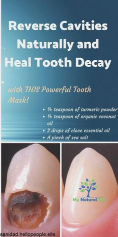 Dental Health, Oral Health, Dental Care, Health Care, Causes Of Mouth Ulcers, Reverse Cavities, Heal Cavities, Receding Gums, Healthy Teeth
