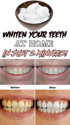 Whiten your teeth at home in just 2 minutes!