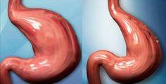 O intestino é um órgão importantíssimo, até em termos de disposição física e de estado de espírito.