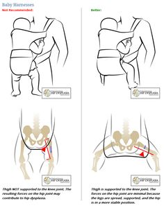 Great illustration of the importance of proper hip positioning while using a baby carrier - also why forward facing carriers are NOT a good idea!