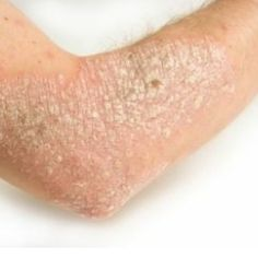 Home Remedies For Dry Skin ICK now that is some DEAD skin.....