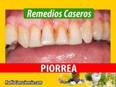 Herbal Medicine, Oral Hygiene, Mouthwash, Tooth Brushing, Dental Floss