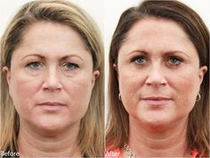 How to Correct Drooping Eyelids and Puffy Bags http://drdarmplasticsurgery.com/2013/12/13/how-to-correct-drooping-eyelids-and-puffy-bags/ More before and after pictures here https://flic.kr/s/aHsjZLFkEM #blepharoplasty