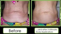 Tighten loose skin! Affordable and fast.  https://heatherhasty.myitworks.com/HOME