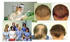 Sikos Hajbeültetés Klinika