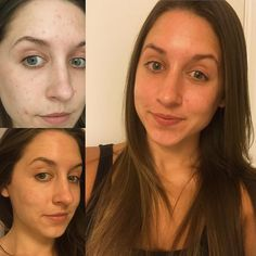Good morning and happy #TransformationTuesday all!  This is a tough one for me to post because the struggle behind the before pictures left me with little confidence bad skin and the feeling like it wasn't going to improve.  My journey with Rodan  Fields has been life changing. I've posted about what it's done for me professionally but this is my first post about what it's done to dramatically transform my skin.  You may or may not see it from the picture (excuse my awful white winter skin )…